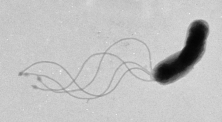 electron micrograph of Helicobacter pylori